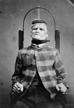 L0019069 Man in restraint chair; by H. Clarke; 1869